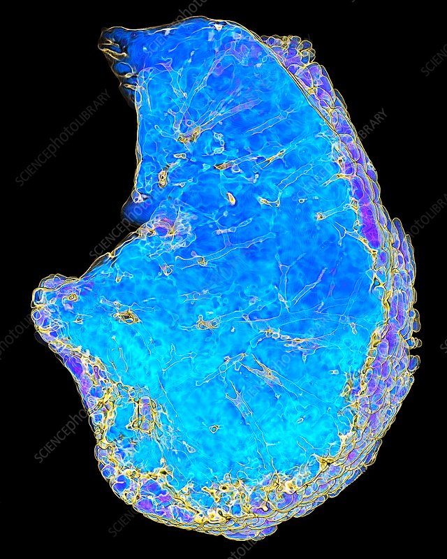 Smoker's lungs and emphysema, 3D CT scan