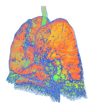 Usual interstitial pneumonia, 3D CT scan