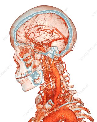 Intracranial and neck blood vessels, 3D CT angiogram