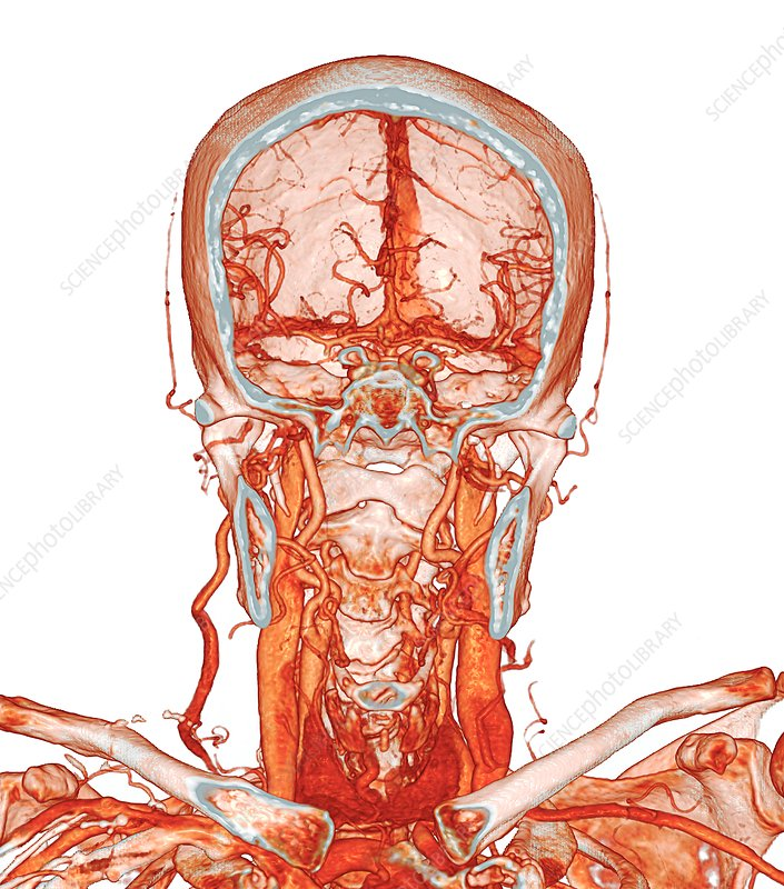 Intracranial And Neck Blood Vessels 3d Ct Angiogram Stock Image