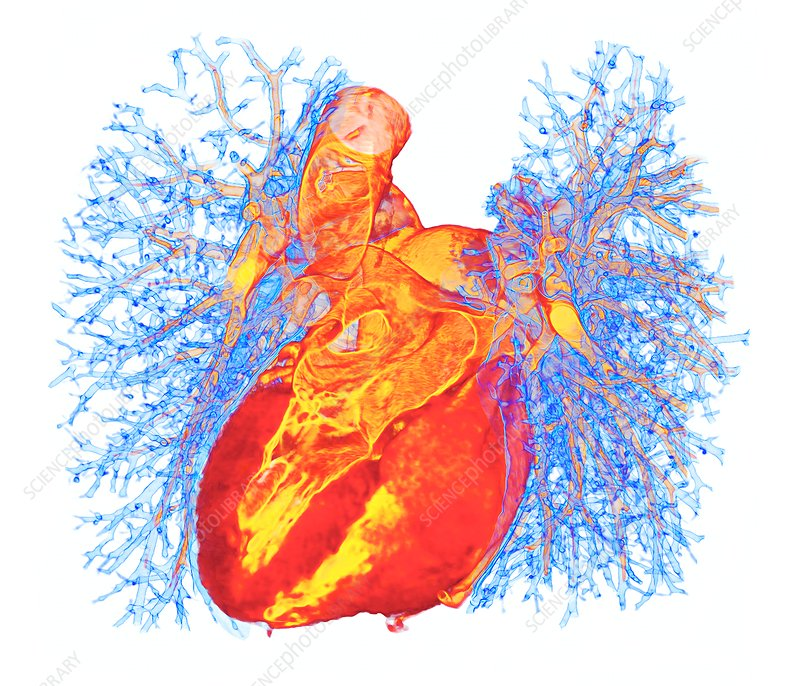 Human heart and lung bronchioles, 3D CT scan