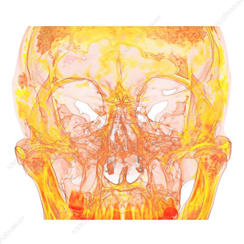 Facial bones of the skull, 3D CT scan - Stock Image C037/4653 ...