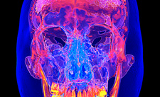 Facial bones of the skull, 3D CT scan