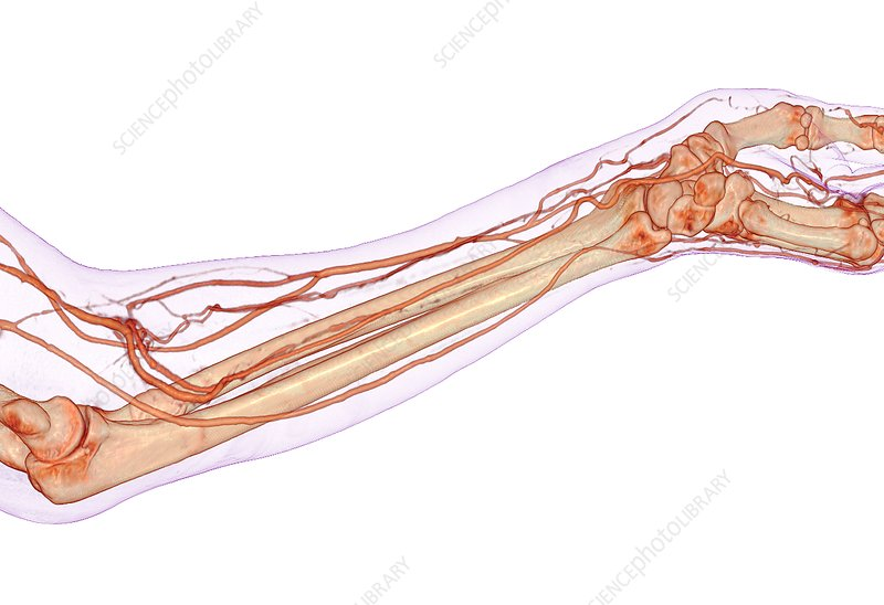 Forearm blood vessels, 3D CT angiogram