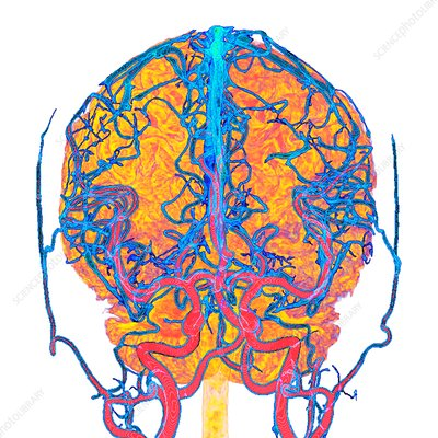 Brain blood vessels, 3D MRI and CT scans