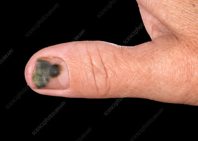 Pseudomonas bacterial nail infection