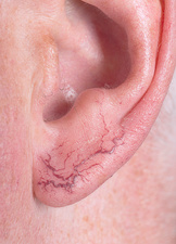 Telangiectasia of the ear lobe