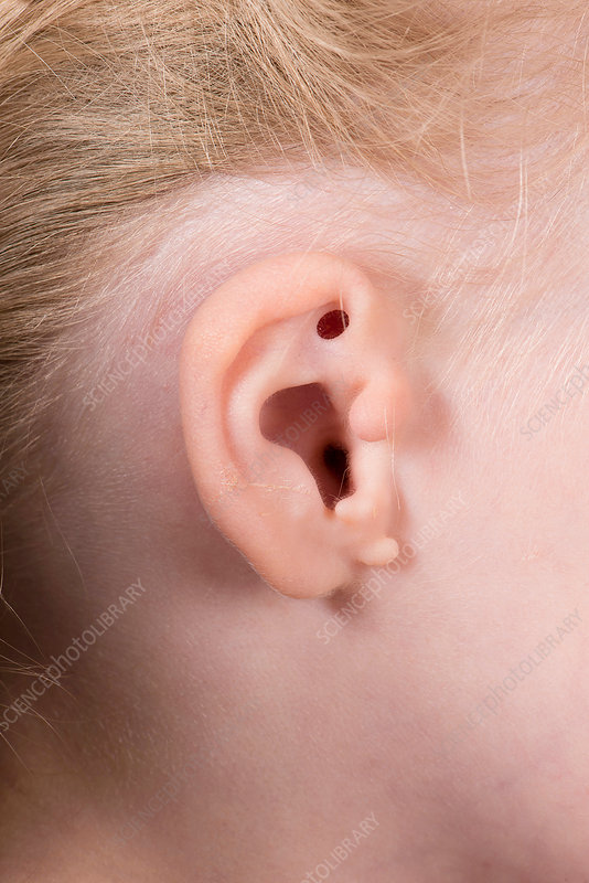 Congenital ear abnormality - Stock Image - C037/4776
