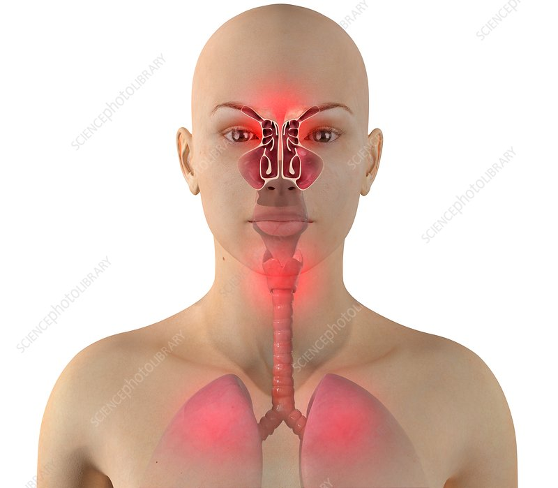 Sinus infection, illustration