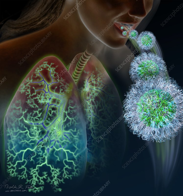 Nanoparticle lung therapy, illustration