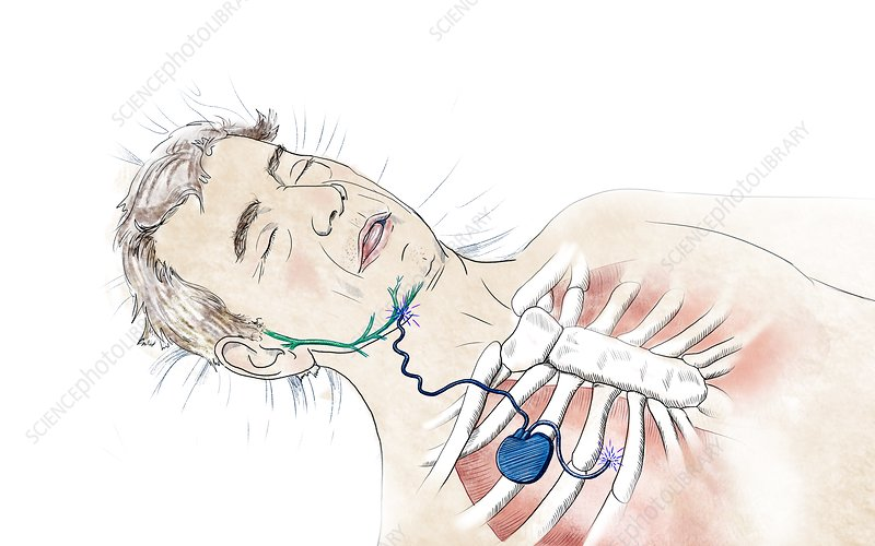 Chest implant for sleep apnoea, illustration
