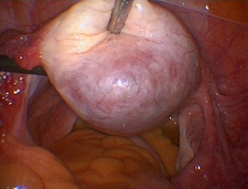 Ovarian endometrioma