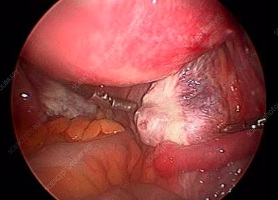 Ovary, endoscope view