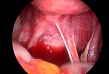 Uterosacral ligament, endoscope view
