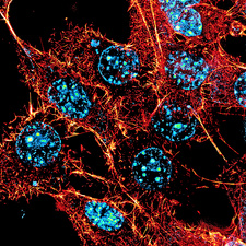 Human cell, fluorescent micrograph