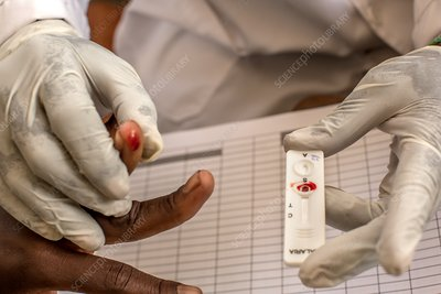 Malaria rapid diagnostic test