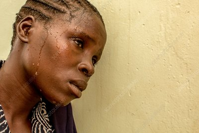 Woman sweating due to malaria