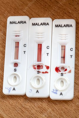 Malaria rapid diagnostic test strips