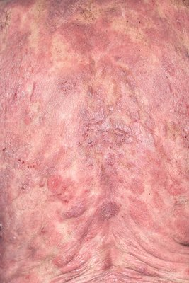 Skin in mycosis fungoides cancer
