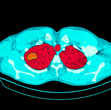 Lung tumour CT scan