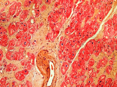 Heart tissue death, light micrograph