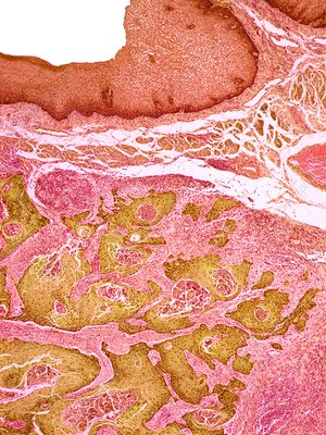 Oesophageal cancer, light micrograph