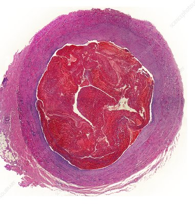 Thrombus, light micrograph