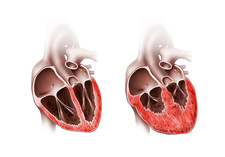 Normal and enlarged hearts, illustration