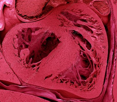 Mouse embryo heart, SEM