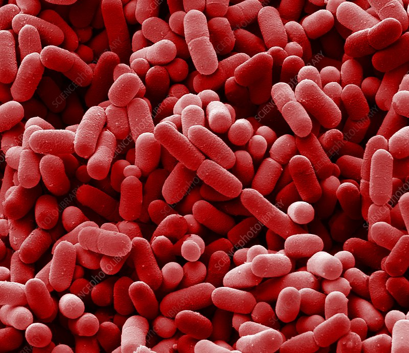 Bacteria from a domestic fridge, SEM