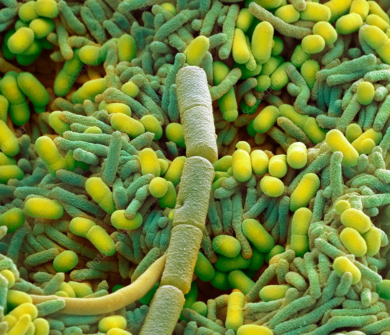 Bacteria from a domestic dishwasher, SEM