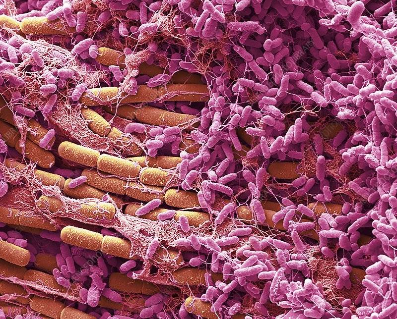 Bacteria from a house fly, SEM