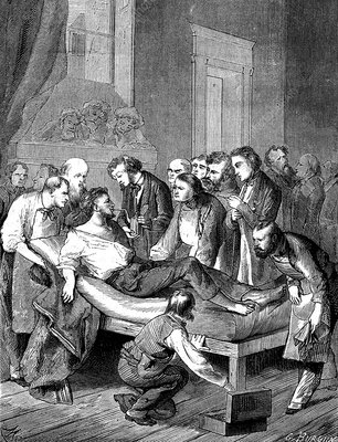 William Morton using ether anaesthesia, 19th C illustration