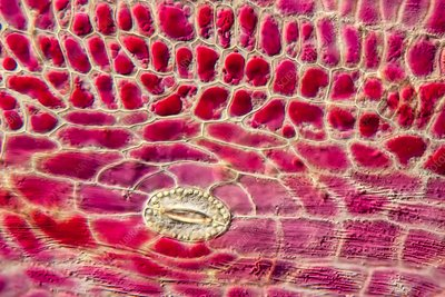 Japanese knotweed epidermis, light micrograph