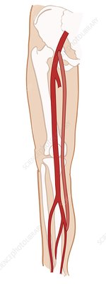 Femoropoplitea bypass in leg, illustration