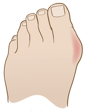 Bunion, illustration