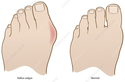Bunion and healthy foot, illustration