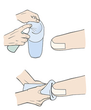 Application of a prosthetic sock, illustration