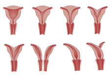 Deformities of the uterus, illustration