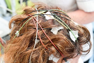 Electroencephalography electrodes attached to scalp
