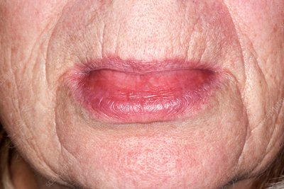 Angioedema of the lower lip