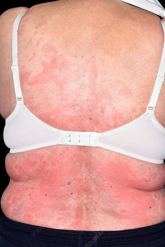Urticaria rash on the back - Stock Image - C038/1551 - Science Photo