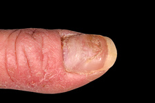 Dystrophic nail in chronic eczema