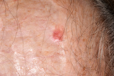 Atypical fibroxanthoma