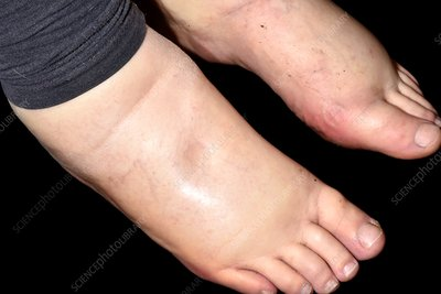 Oedema of the legs in alcoholism