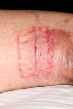 Allergic reaction on surgical wound