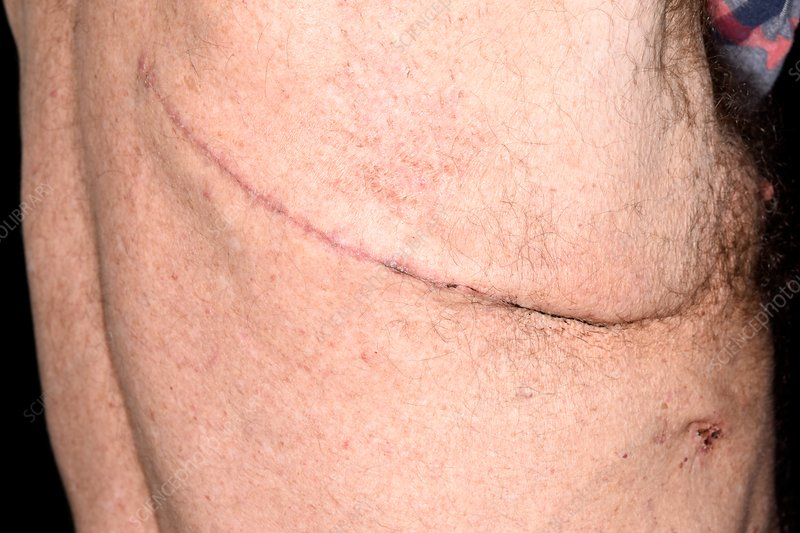 Lung cancer surgery scar - Stock Image - C038/1709 - Science Photo