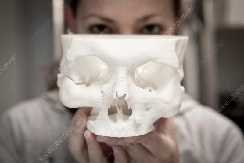 3D printed bone implants
