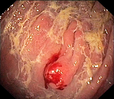 Atrophic gastritis and tumour, endoscope view