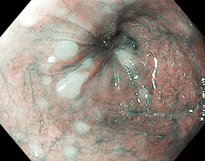 Glycogenic acanthosis of the oesophagus, endoscope view